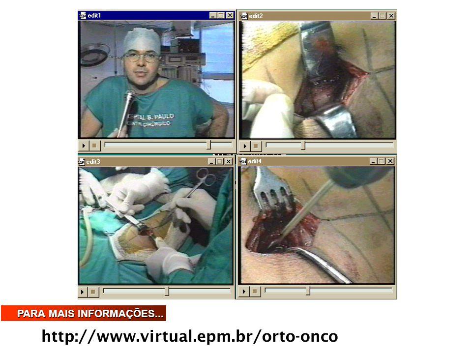 http://www.virtual.epm.br/orto-onco PARA MAIS INFORMAÇÕES...