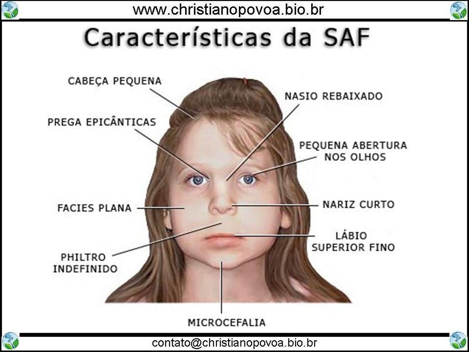 Síndrome do Alcoolismo Fetal Retardo Mental Surdez Cegueira Problemas Cardiovasculares