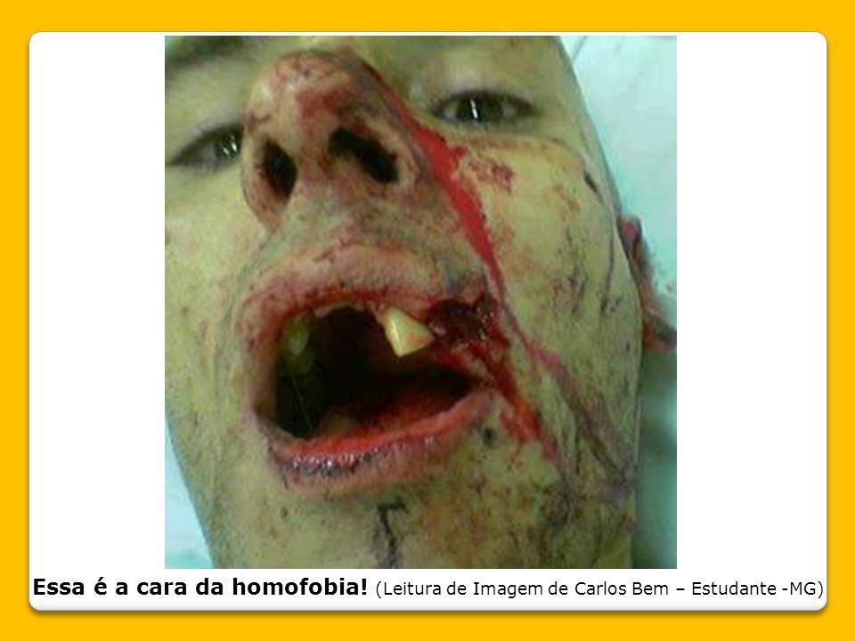 Essa é a cara da homofobia! (Leitura de Imagem de Carlos Bem – Estudante -MG)
