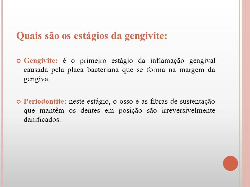 Quais são os estágios da gengivite: Gengivite: é o primeiro estágio da inflamação gengival causada pela placa bacteriana que se forma na margem da gen