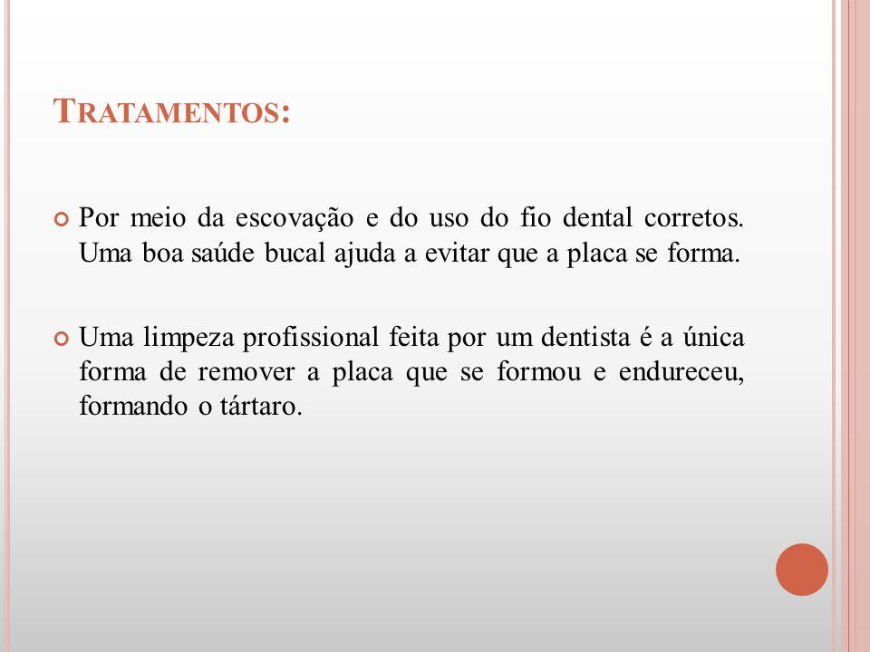 T RATAMENTOS : Por meio da escovação e do uso do fio dental corretos. Uma boa saúde bucal ajuda a evitar que a placa se forma. Uma limpeza profissiona