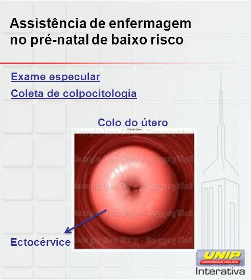 Exame especular Coleta de colpocitologia Colo do útero Ectocérvice Assistência de enfermagem no pré-natal de baixo risco