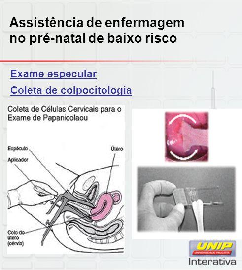 Exame especular Coleta de colpocitologia