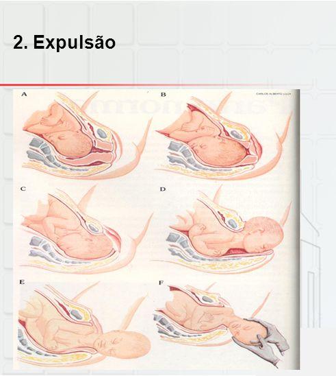 2. Expulsão