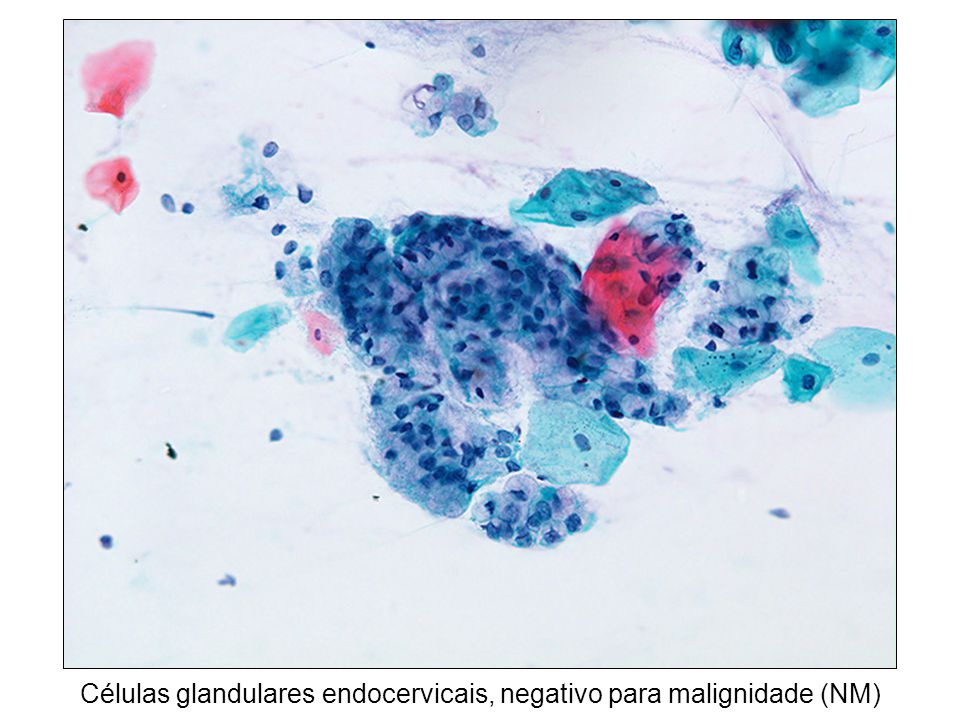 Células glandulares endocervicais, negativo para malignidade (NM)