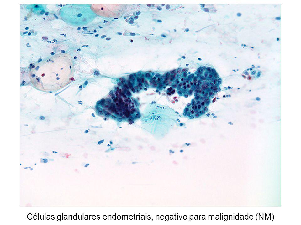 Células glandulares endometriais, negativo para malignidade (NM)