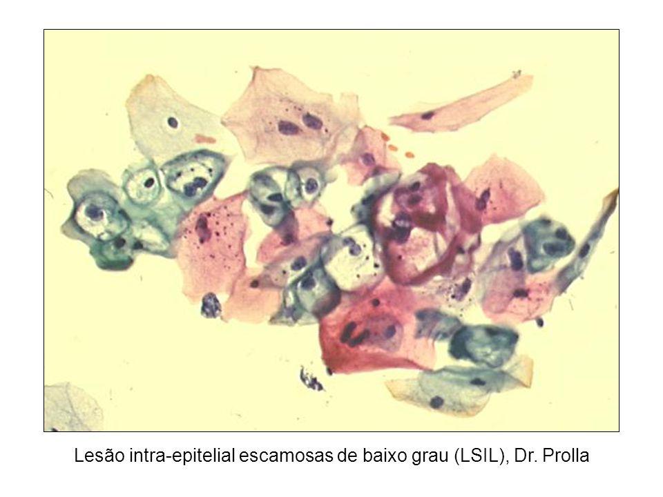 Lesão intra-epitelial escamosas de baixo grau (LSIL), Dr. Prolla