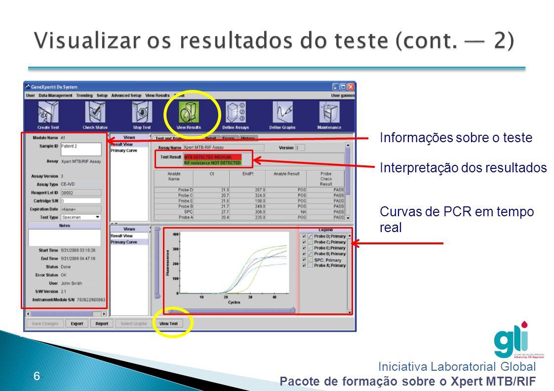 Iniciativa Laboratorial Global Pacote de formação sobre o Xpert MTB/RIF -7--7- Se necessário, pode editar as informações e notas associadas ao teste após o final do teste ou enquanto está a ser executado 1.
