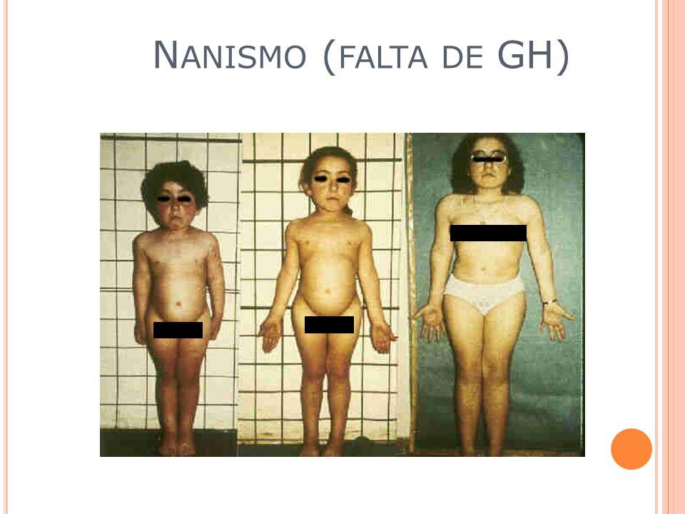 Hormônio de Crescimento (GH) Hormônio do crescimento induz o crescimento de músculos e ossos.