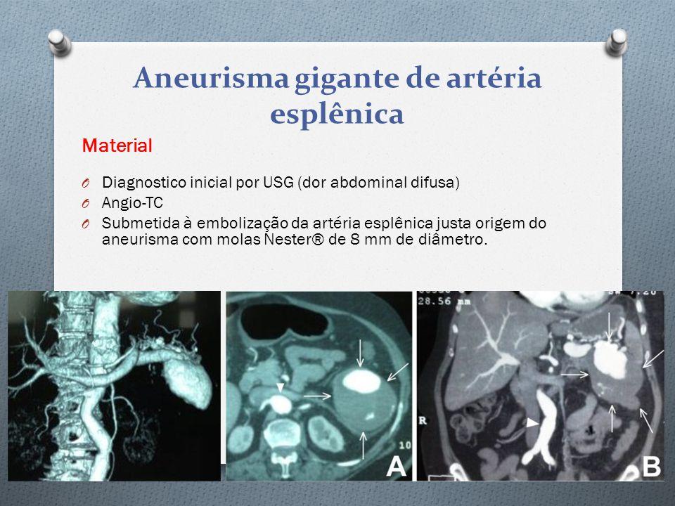 Material O Diagnostico inicial por USG (dor abdominal difusa) O Angio-TC O Submetida à embolização da artéria esplênica justa origem do aneurisma com