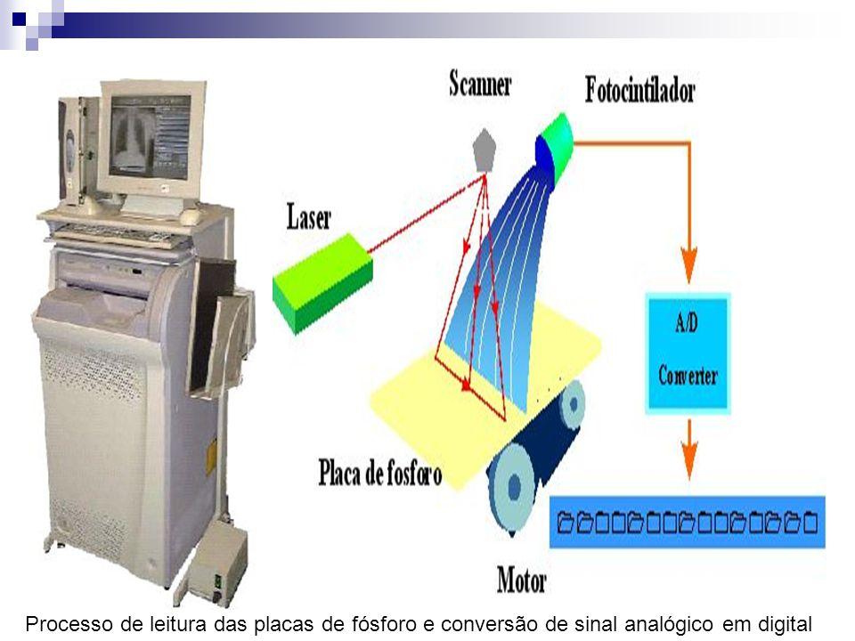 te: NDT - FUJI) Processo de leitura das placas de fósforo e conversão de sinal analógico em digital