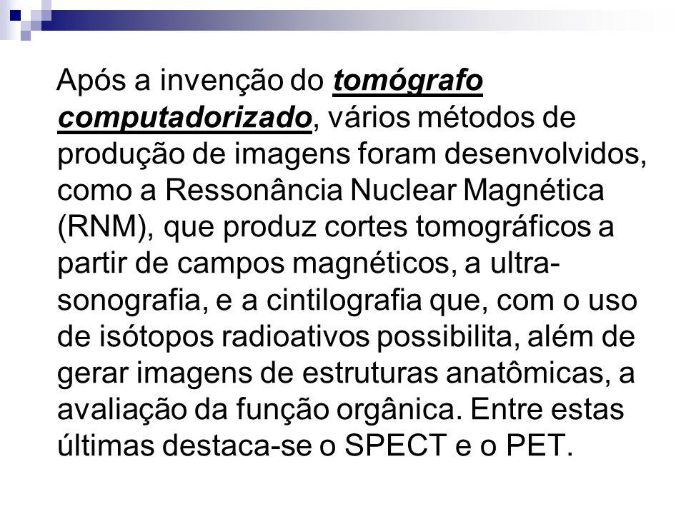 Após a invenção do tomógrafo computadorizado, vários métodos de produção de imagens foram desenvolvidos, como a Ressonância Nuclear Magnética (RNM), q