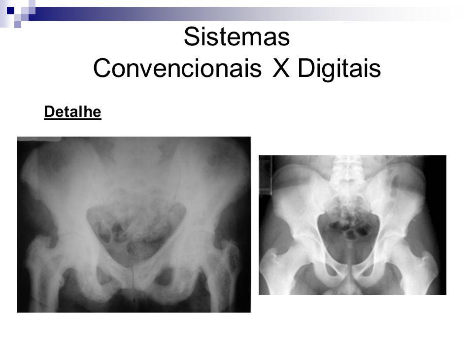 Sistemas Convencionais X Digitais Detalhe