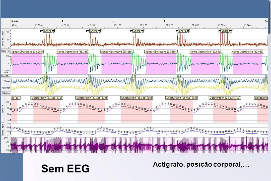 Actígrafo, posição corporal,… Sem EEG