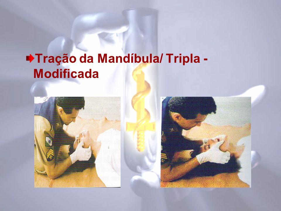 Tração da Mandíbula/ Tripla - Modificada
