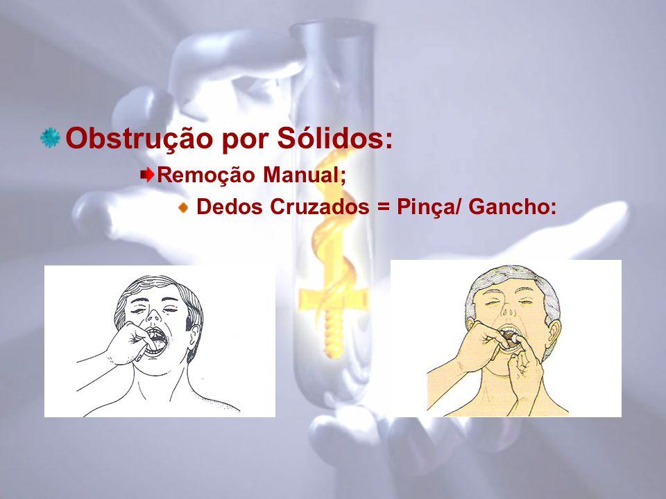 Obstrução por Sólidos: Remoção Manual; Dedos Cruzados = Pinça/ Gancho: