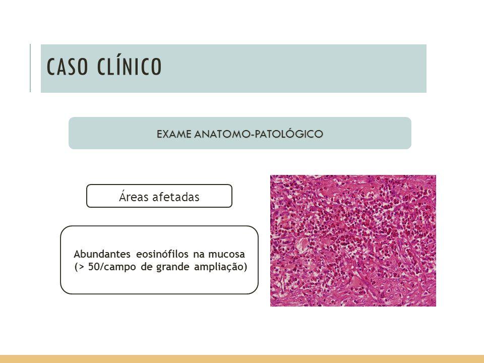 EXAME ANATOMO-PATOLÓGICO Áreas afetadas Abundantes eosinófilos na mucosa (> 50/campo de grande ampliação)