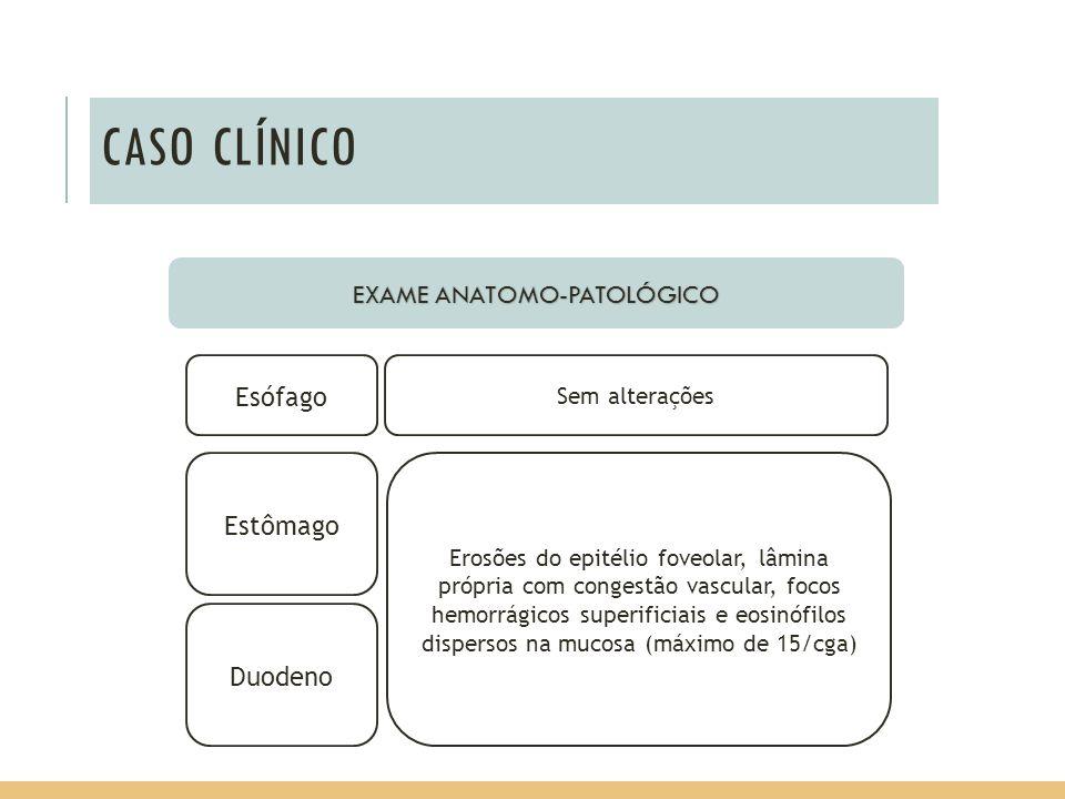 CASO CLÍNICO EXAME ANATOMO-PATOLÓGICO Estômago Duodeno Sem alterações Esófago Erosões do epitélio foveolar, lâmina própria com congestão vascular, foc