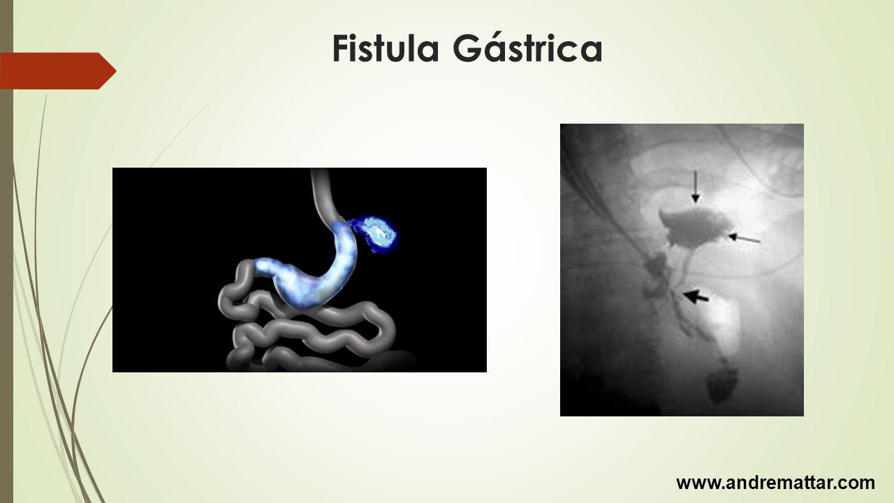 Fistula Gástrica