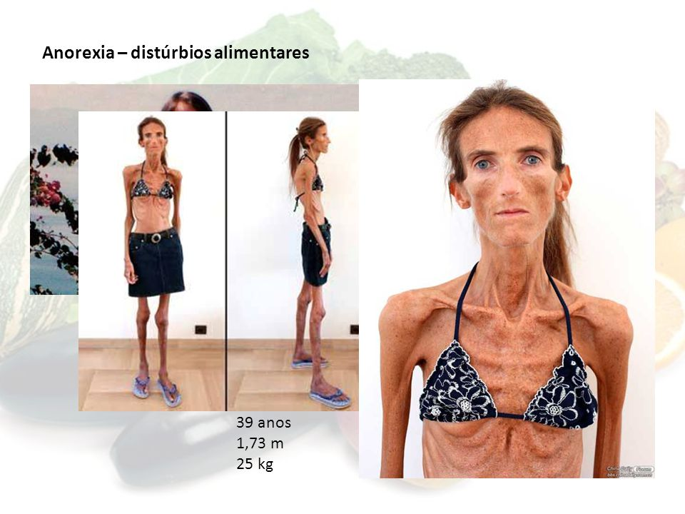Anorexia – distúrbios alimentares 39 anos 1,73 m 25 kg