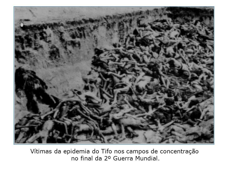 Vítimas da epidemia do Tifo nos campos de concentração no final da 2º Guerra Mundial.