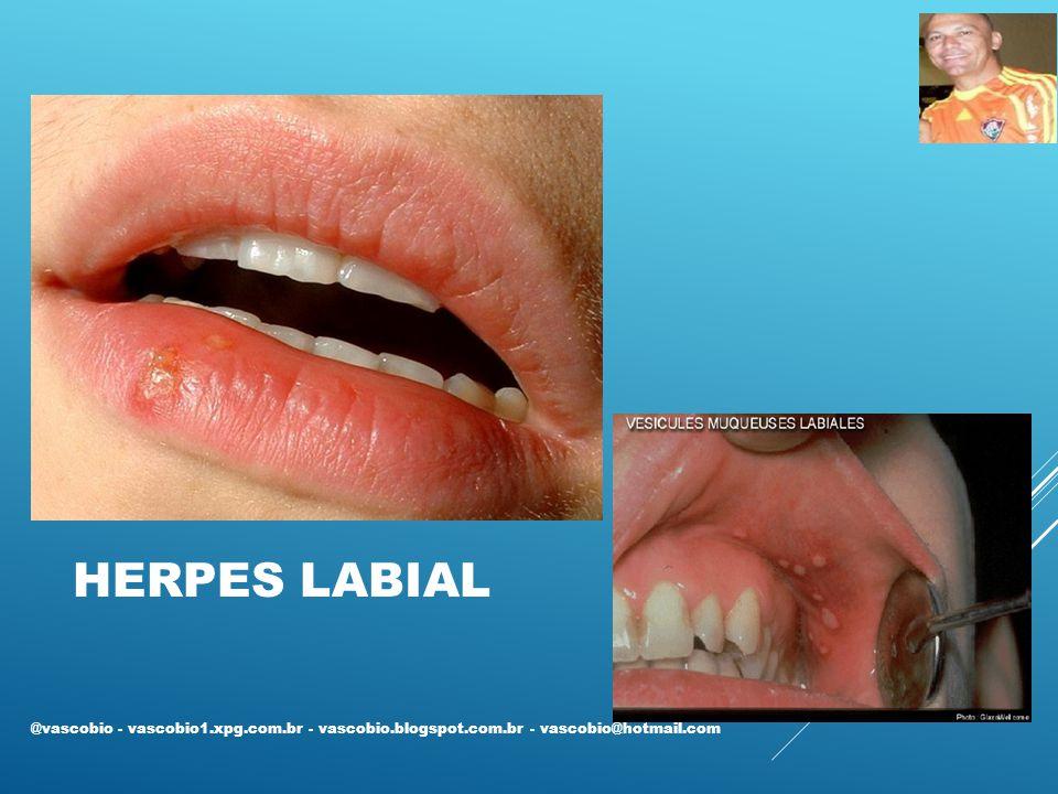 HERPES LABIAL @vascobio - vascobio1.xpg.com.br - vascobio.blogspot.com.br - vascobio@hotmail.com
