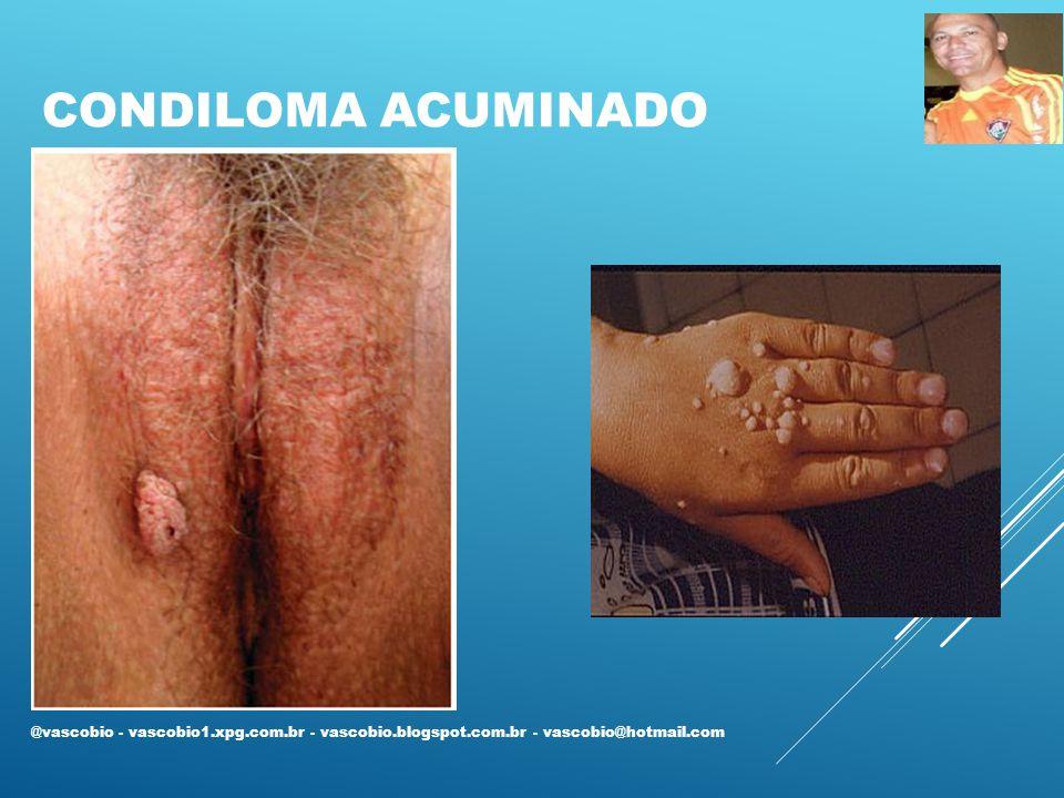 CONDILOMA ACUMINADO @vascobio - vascobio1.xpg.com.br - vascobio.blogspot.com.br - vascobio@hotmail.com