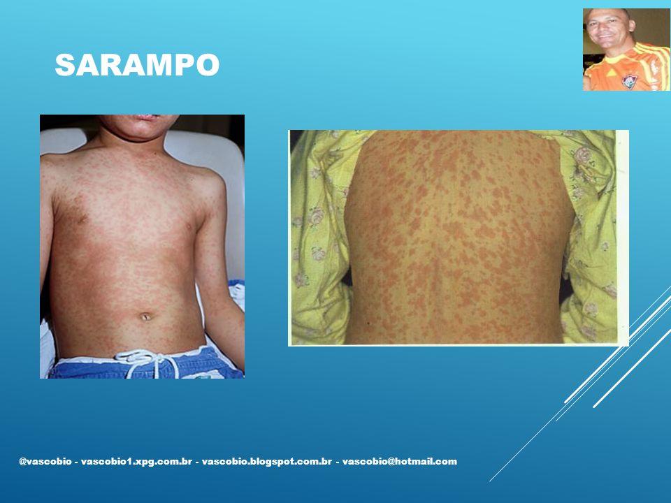 SARAMPO @vascobio - vascobio1.xpg.com.br - vascobio.blogspot.com.br - vascobio@hotmail.com