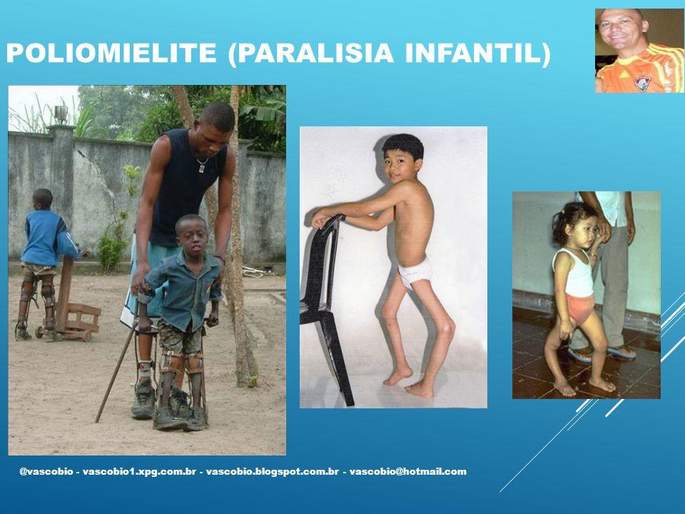 POLIOMIELITE (PARALISIA INFANTIL) @vascobio - vascobio1.xpg.com.br - vascobio.blogspot.com.br - vascobio@hotmail.com