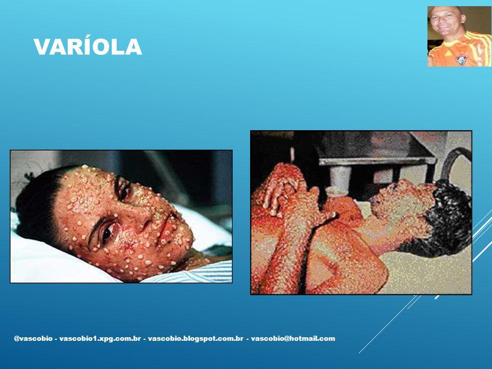 RUBEOLA @vascobio - vascobio1.xpg.com.br - vascobio.blogspot.com.br - vascobio@hotmail.com