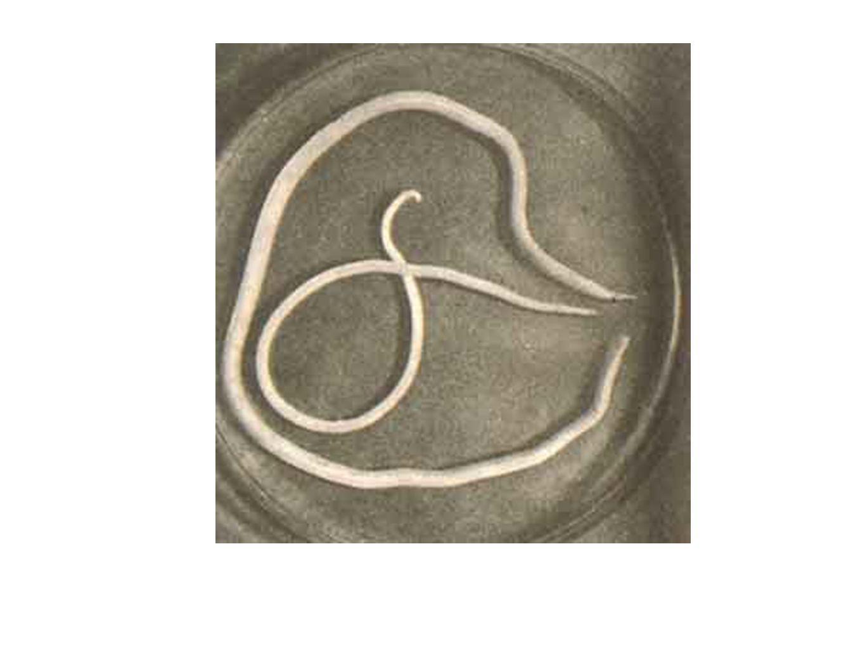 Ascaridíase Causada pelo Ascaris lumbricoides Transmitida por água e alimento contaminados Causam dores abdominais e até convulsões
