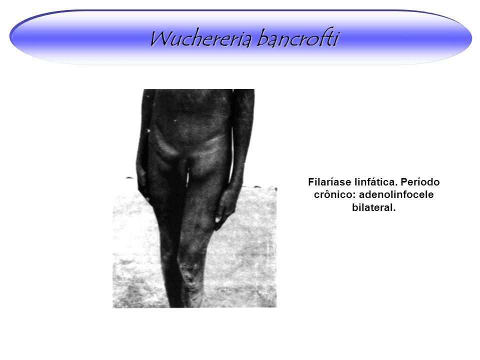 Wuchereria bancrofti Filaríase linfática. Período crônico: adenolinfocele bilateral.