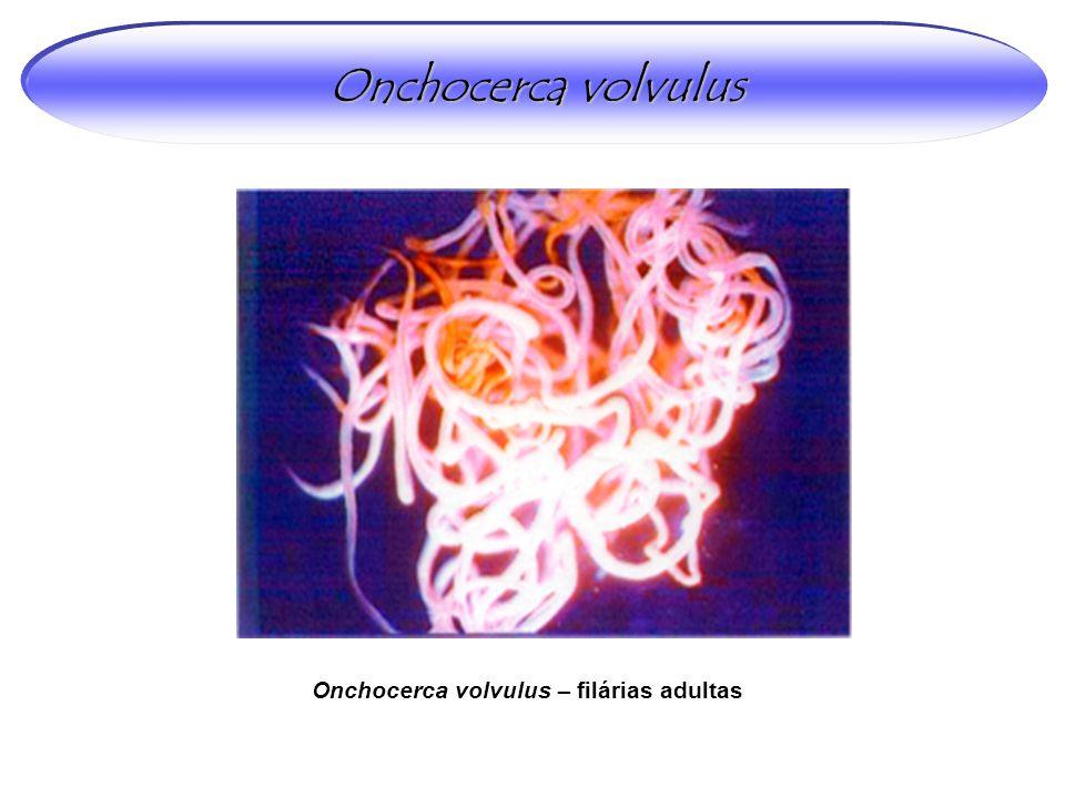 Onchocerca volvulus – filárias adultas Onchocerca volvulus
