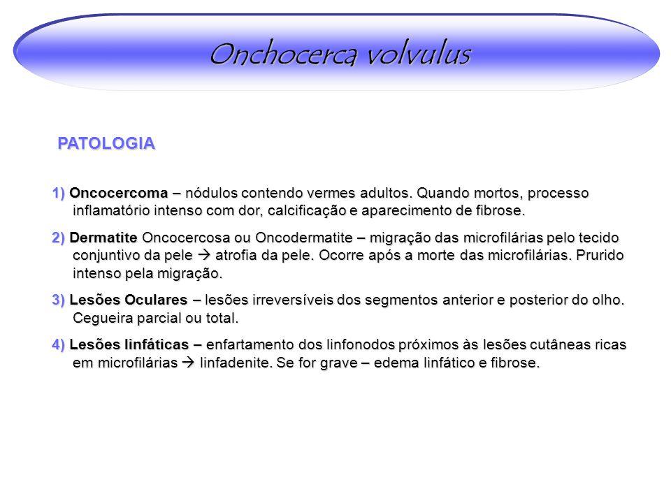PATOLOGIA 1) Oncocercoma – nódulos contendo vermes adultos.