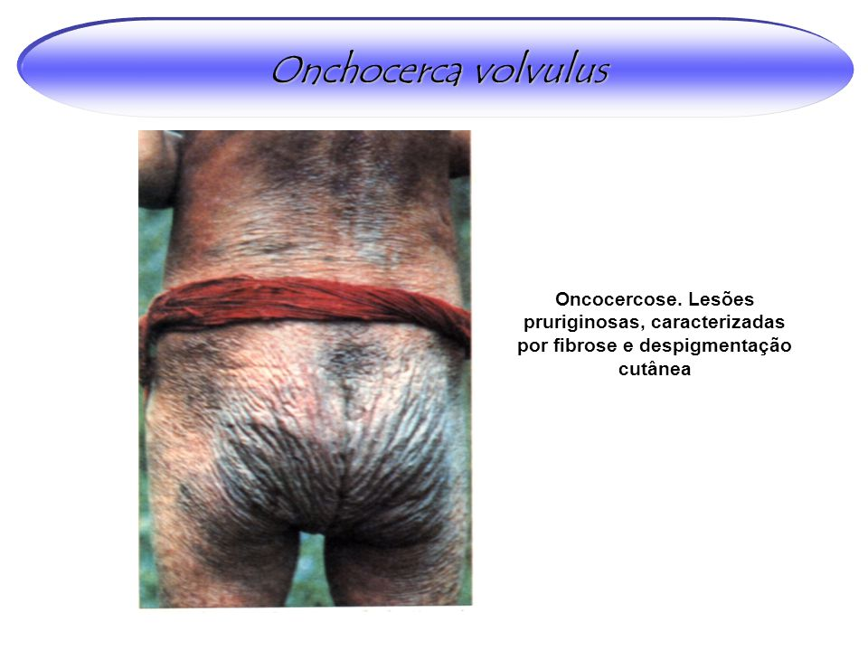 Oncocercose. Lesões pruriginosas, caracterizadas por fibrose e despigmentação cutânea Onchocerca volvulus