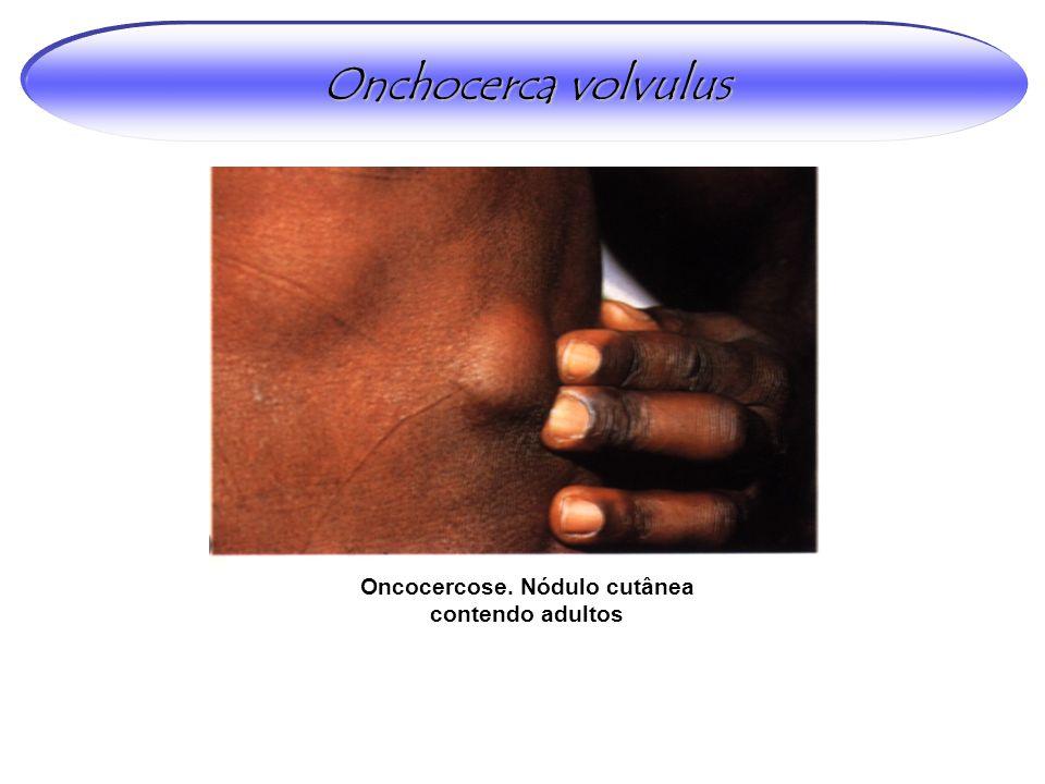 Oncocercose. Nódulo cutânea contendo adultos Onchocerca volvulus