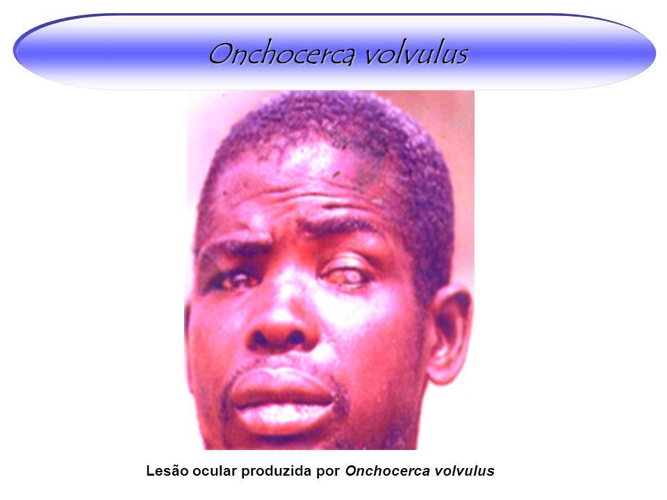 Lesão ocular produzida por Onchocerca volvulus Onchocerca volvulus
