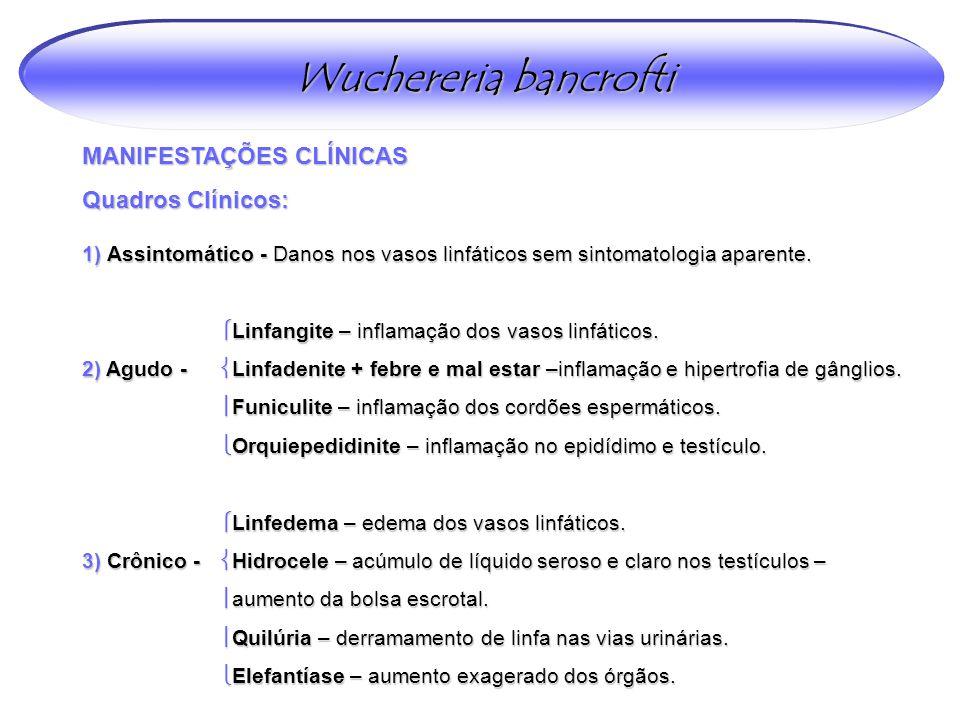 MANIFESTAÇÕES CLÍNICAS Quadros Clínicos: Wuchereria bancrofti 1) Assintomático - Danos nos vasos linfáticos sem sintomatologia aparente.  Linfangite