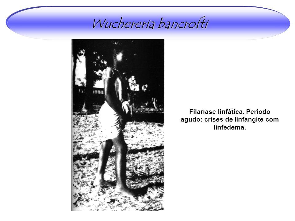 Wuchereria bancrofti Filaríase linfática. Período agudo: crises de linfangite com linfedema.