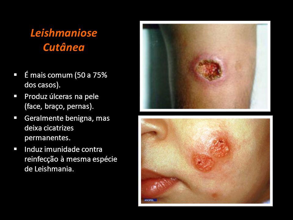 Leishmaniose Cutânea Mucosa  Lesões na pele e mucosas.