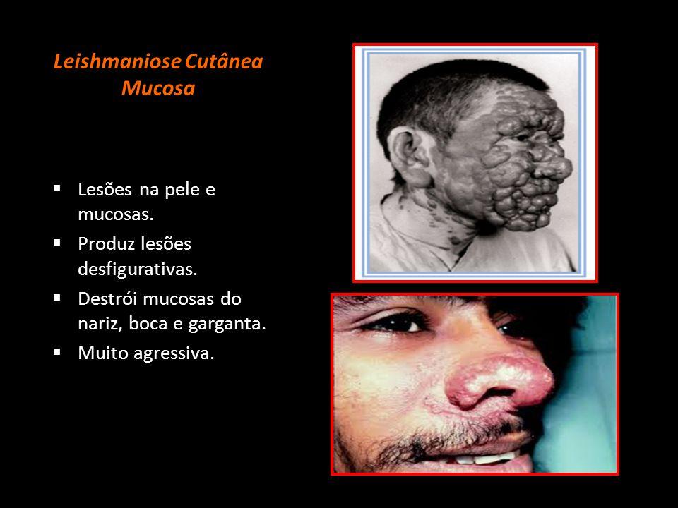 Leishmaniose Cutânea Mucosa  Lesões na pele e mucosas.  Produz lesões desfigurativas.  Destrói mucosas do nariz, boca e garganta.  Muito agressiva