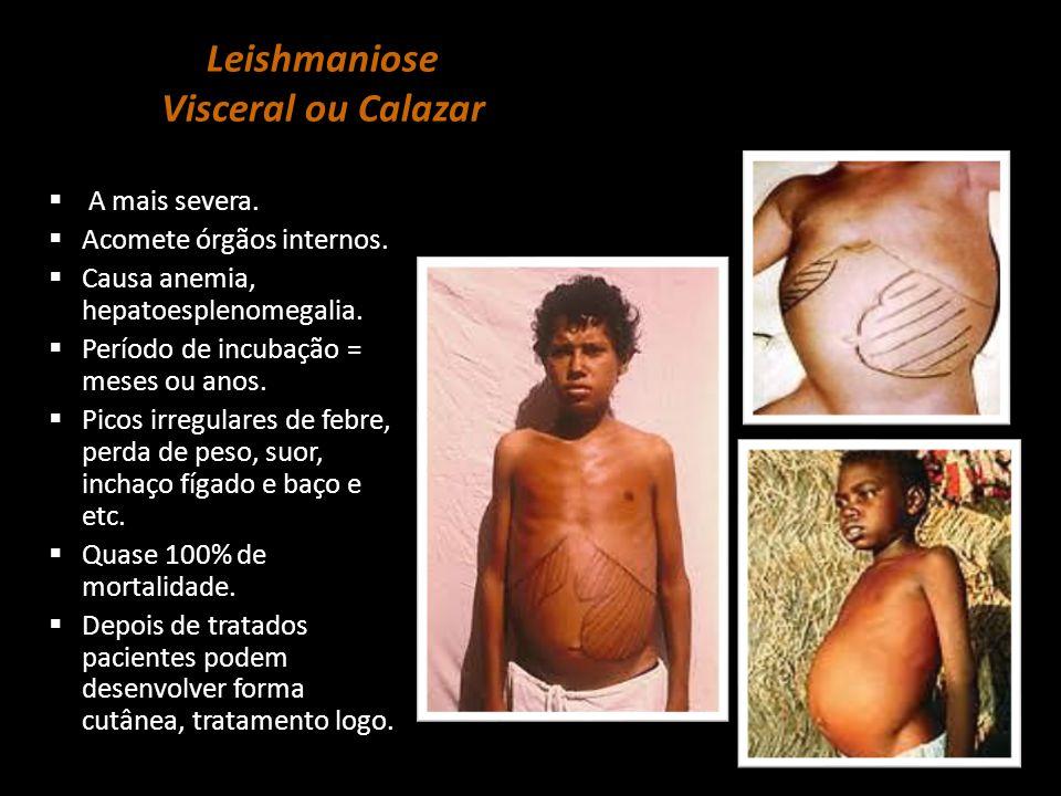 Leishmaniose Visceral ou Calazar  A mais severa.  Acomete órgãos internos.  Causa anemia, hepatoesplenomegalia.  Período de incubação = meses ou a