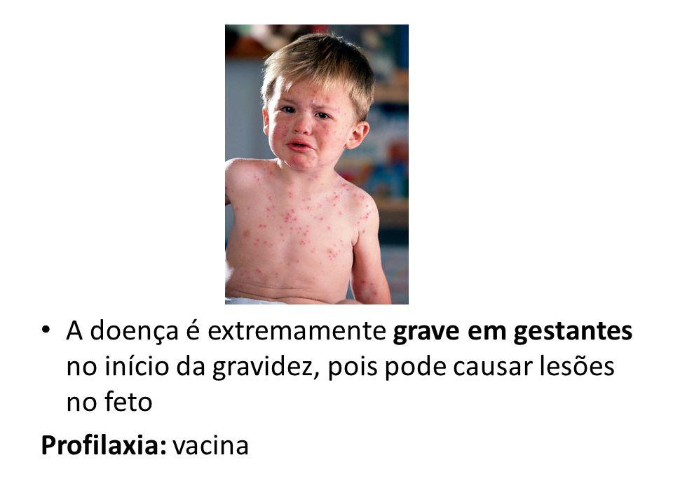 A doença é extremamente grave em gestantes no início da gravidez, pois pode causar lesões no feto Profilaxia: vacina