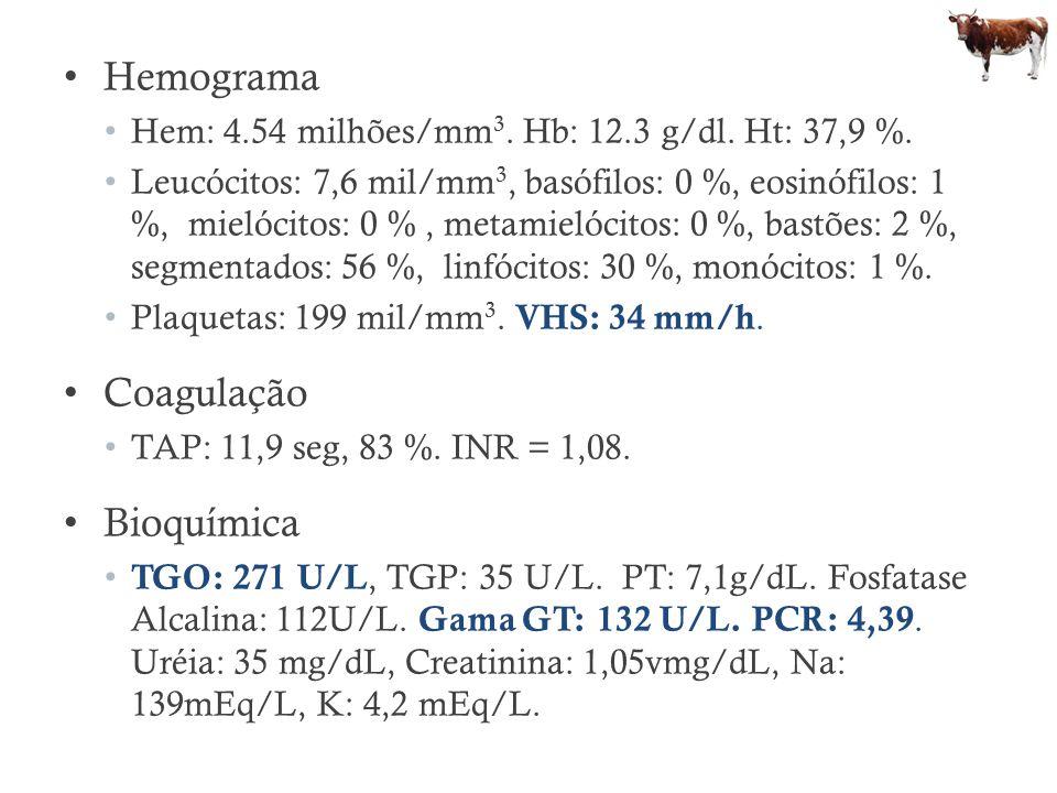 Hemograma Hem: 4.54 milhões/mm 3. Hb: 12.3 g/dl. Ht: 37,9 %. Leucócitos: 7,6 mil/mm 3, basófilos: 0 %, eosinófilos: 1 %, mielócitos: 0 %, metamielócit