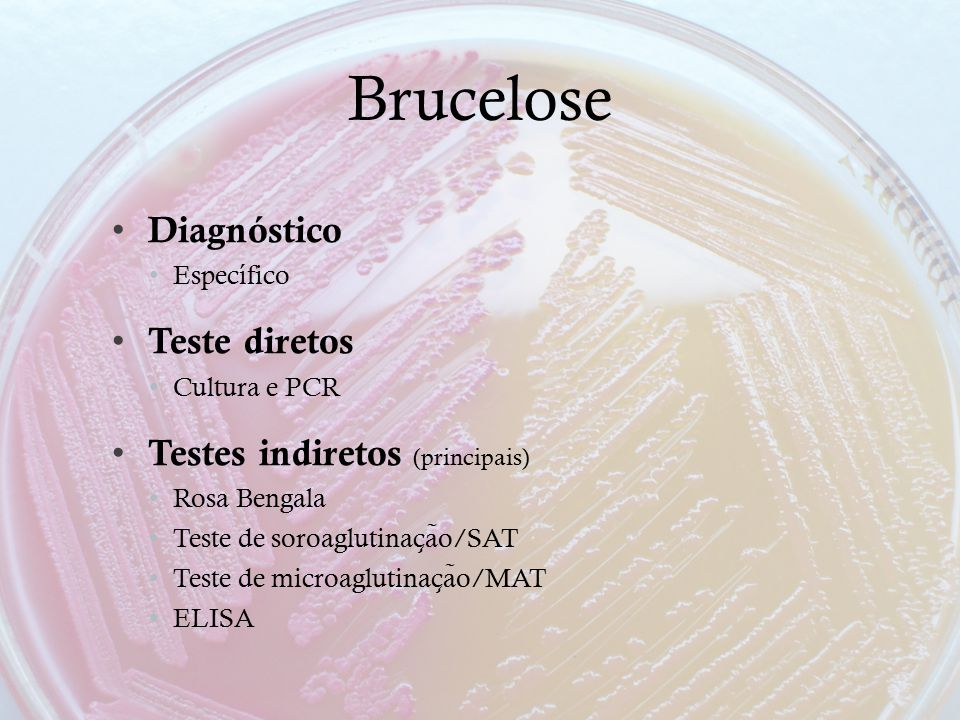 Brucelose Diagnóstico Específico Teste diretos Cultura e PCR Testes indiretos (principais) Rosa Bengala Teste de soroaglutinac ̧ a ̃ o/SAT Teste de mi