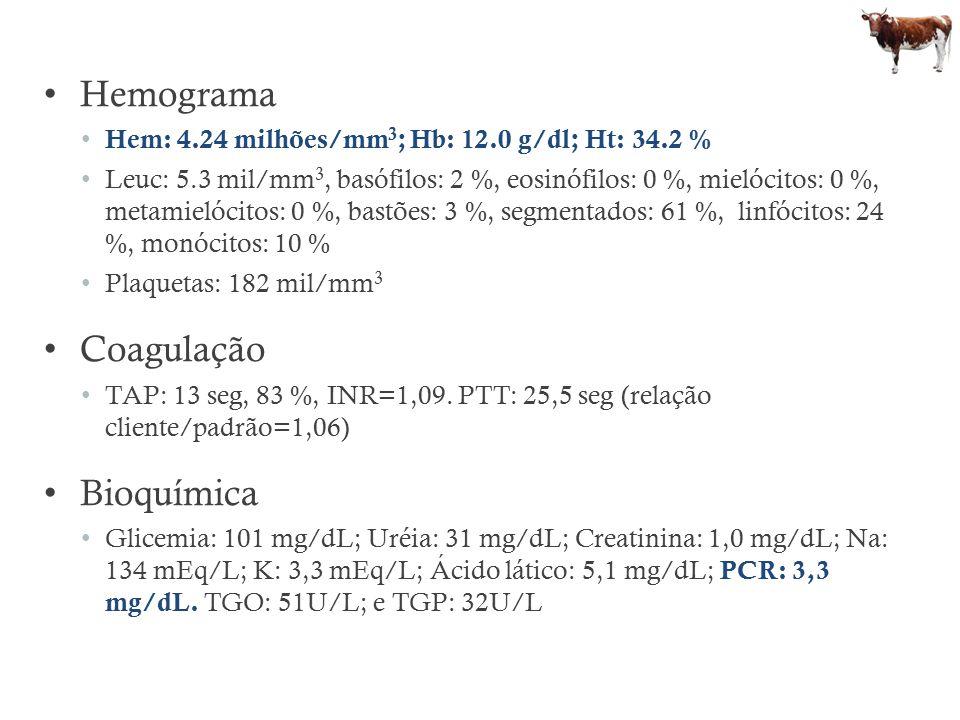 Hemograma Hem: 4.24 milhões/mm 3 ; Hb: 12.0 g/dl; Ht: 34.2 % Leuc: 5.3 mil/mm 3, basófilos: 2 %, eosinófilos: 0 %, mielócitos: 0 %, metamielócitos: 0