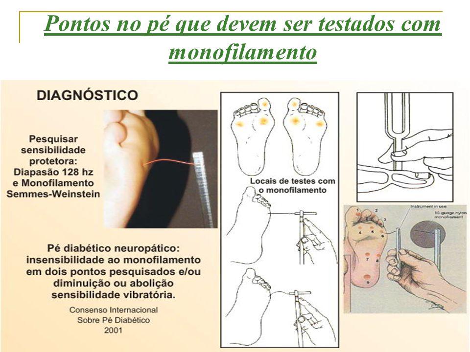 Pontos no pé que devem ser testados com monofilamento