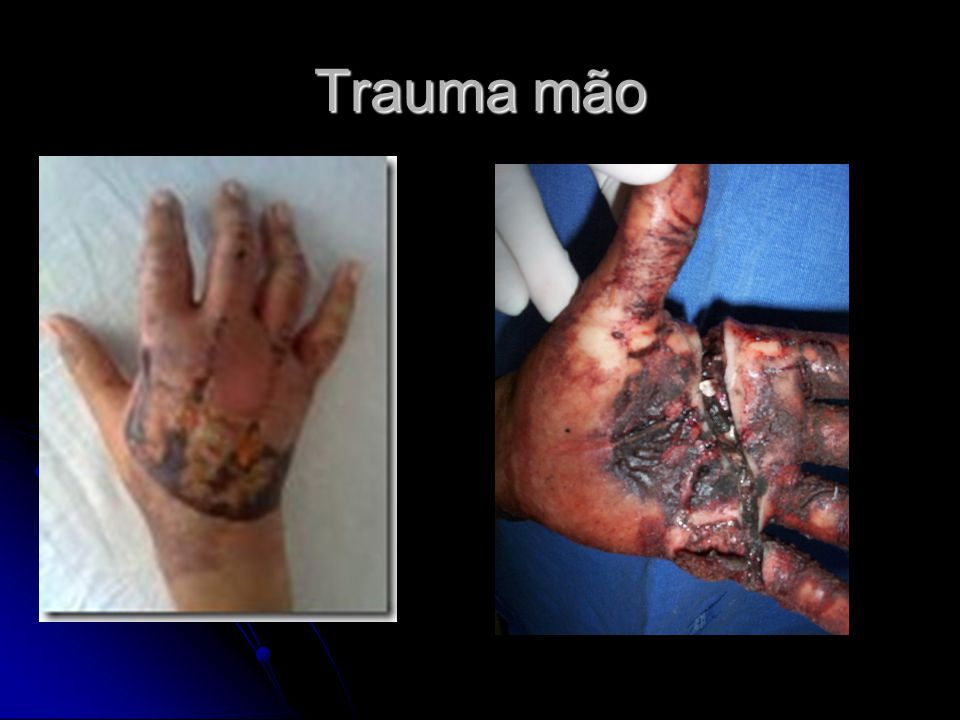 Trauma mão