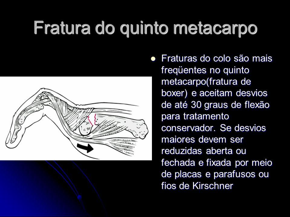 Fratura do quinto metacarpo Fraturas do colo são mais freqüentes no quinto metacarpo(fratura de boxer) e aceitam desvios de até 30 graus de flexão para tratamento conservador.