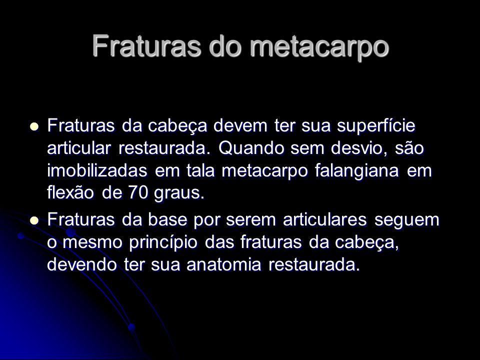 Fraturas do metacarpo Fraturas da cabeça devem ter sua superfície articular restaurada.